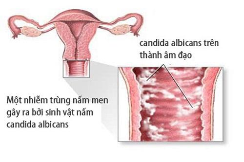 Làm thế nào để khử mùi hôi vùng kín ở nữ giới1