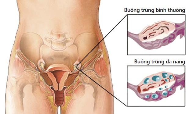 """Hệ thống nội soi cổ tử cung Storz - Khiến bệnh buồng trứng """"rời xa"""" phái đẹp 1"""