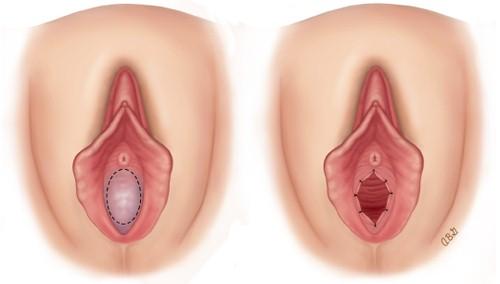 Trước và sau khi vá màng trinh