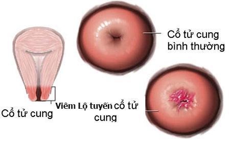 Không khó để biết viêm lộ tuyến cổ tử cung có thể tự khỏi?