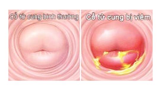 Liệu có thể sinh thường khi mắc viêm lộ tuyến cổ tử cung?