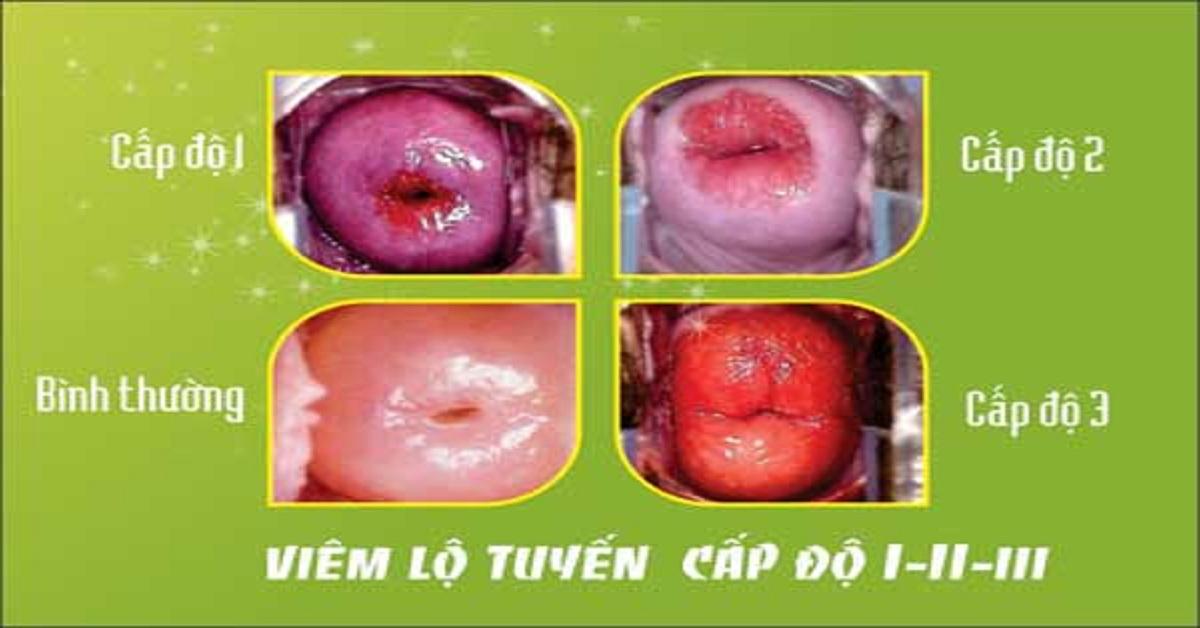 Ba cấp độ của bệnh viêm lộ tuyến