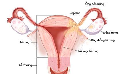 hình ảnh bệnh viêm nội mạc tử cung